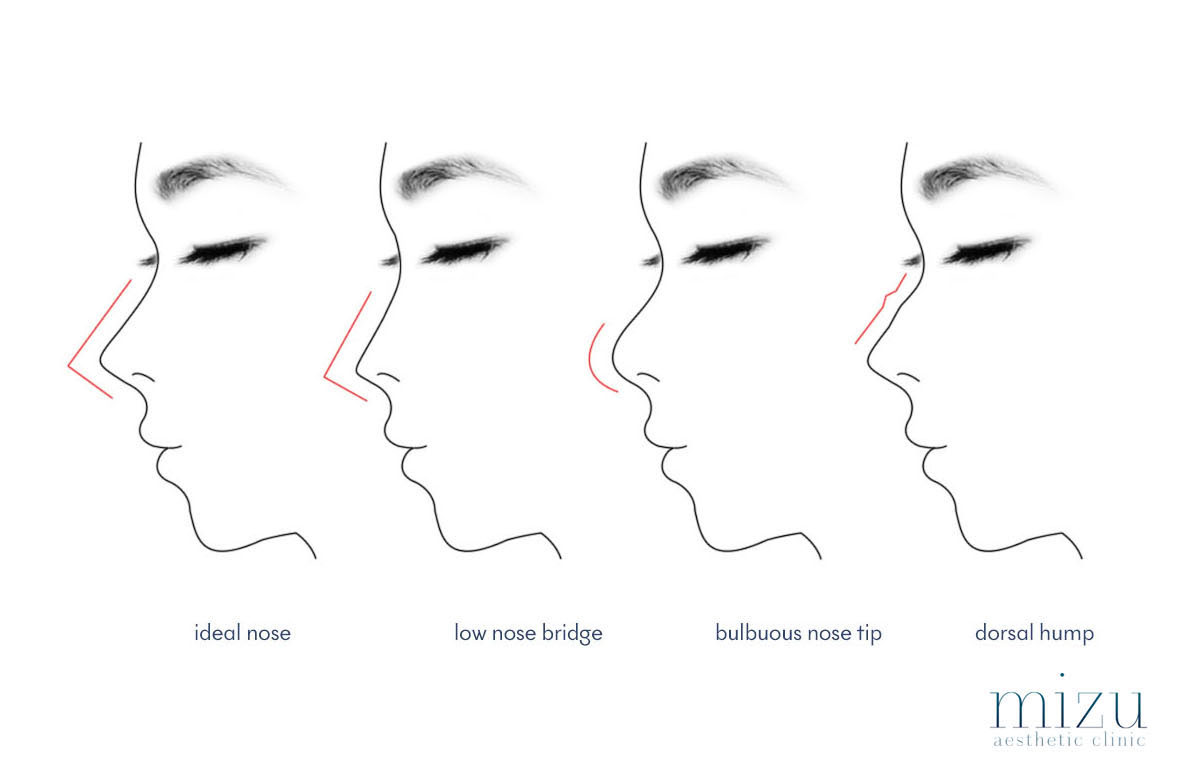 types of noses we commonly see - ideal, low nose bridge, bulbuous, bumpy nose bridge