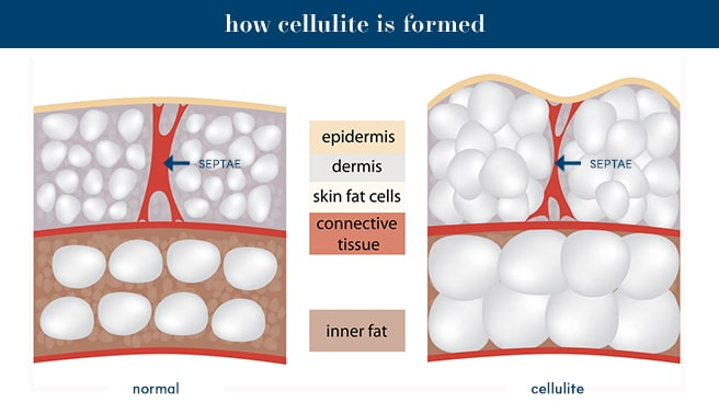 cellulite vs normal skin