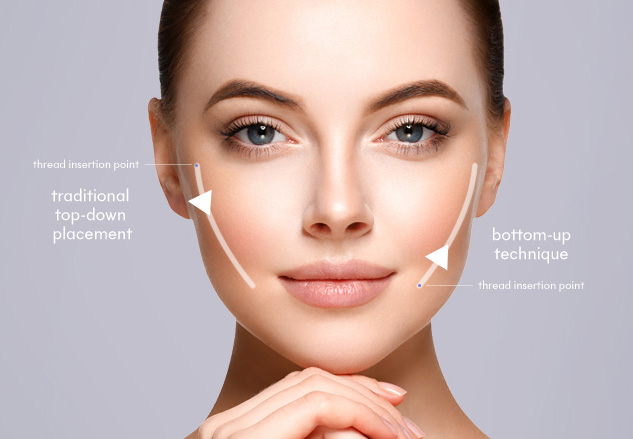 PDO Non-Surgical V Face Thread Lift | Mizu Aesthetic Clinic