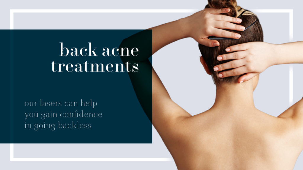 mizu aesthetic back acne treatments