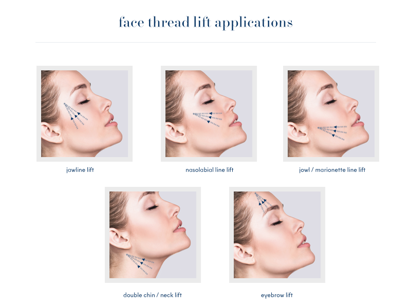 Image result for threadlifts face