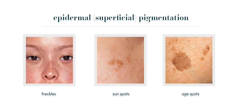 Epidermal pigmentations