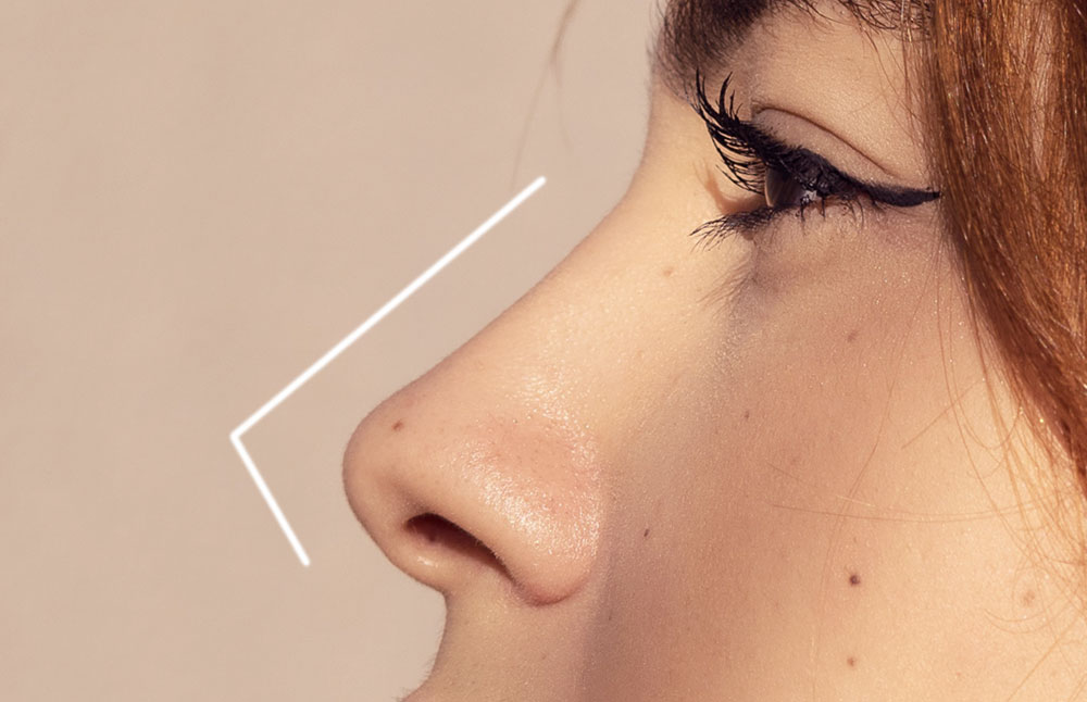 Nose Augmentation Fillers or Threads