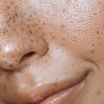 Pigmentation Lasers