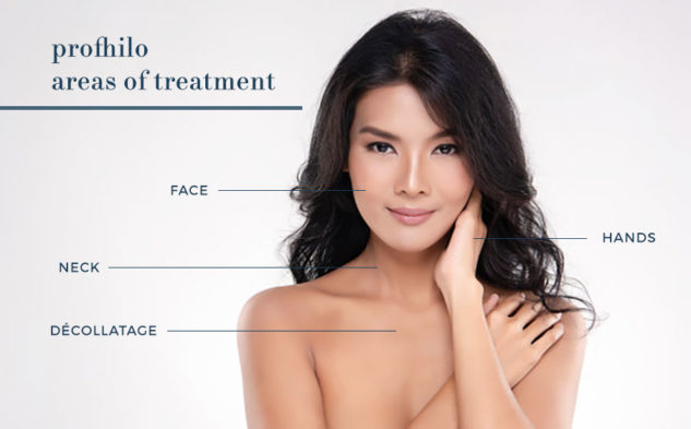 Areas of Treatment for Profhilo Injectable