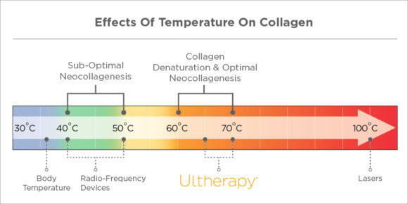 Ultherapy vs RF - Neocollagenesis