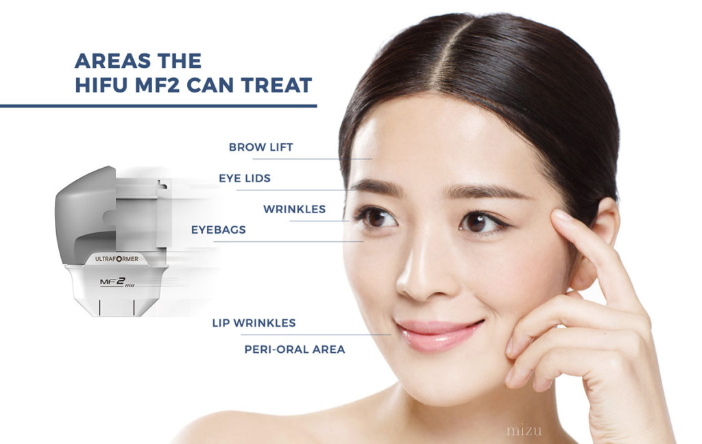areas you can treat with the ultraformer hifu MF2 2mm handpiece