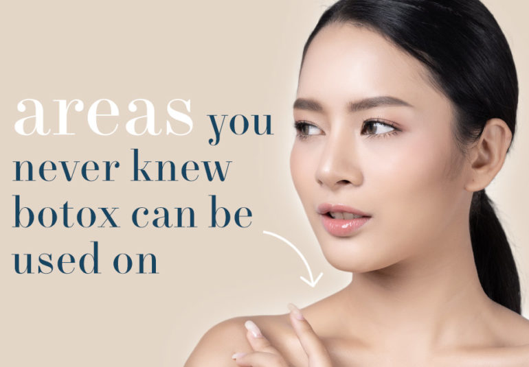 Areas you never knew you can do botox on