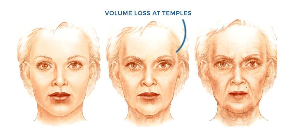 temple volume loss as we age