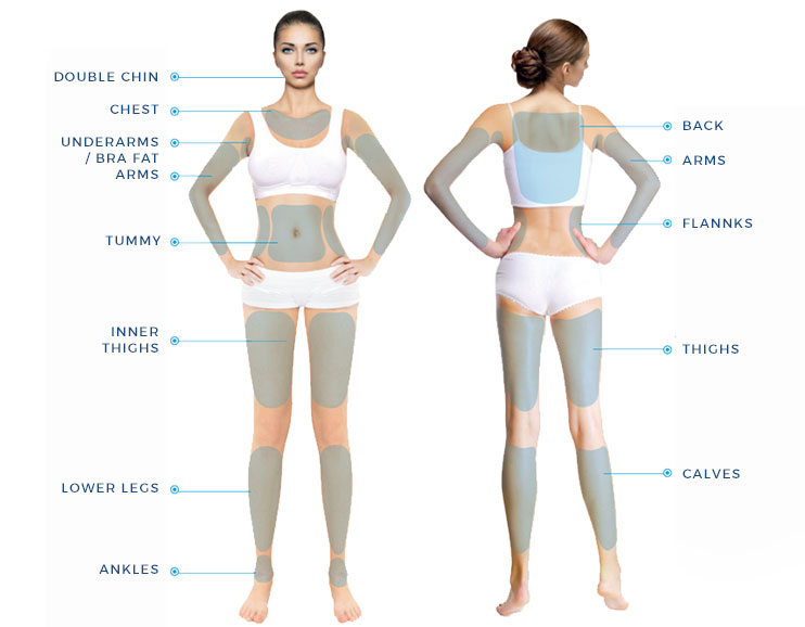 Ultraformer 3 HIFU Body Areas you Can do