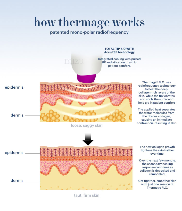 How Thermage Works